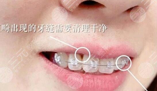 赣州口腔医院牙齿矫正效果后