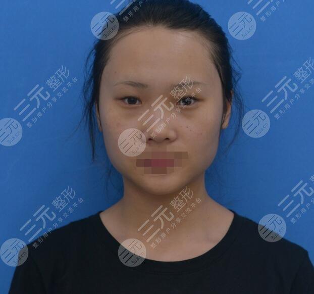 上海二院整形科双眼皮案例前