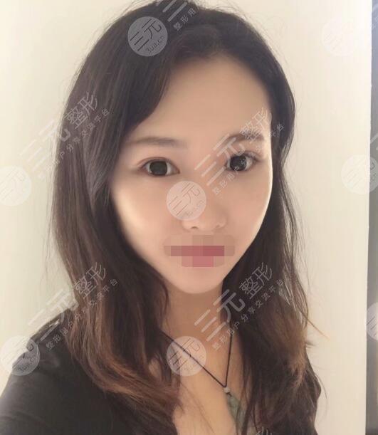 上海二院整形科双眼皮案例后