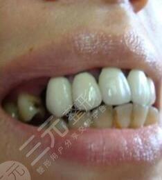徐州二院牙科洗牙前