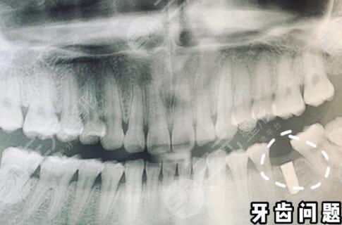 浙二医院口腔科口腔治疗