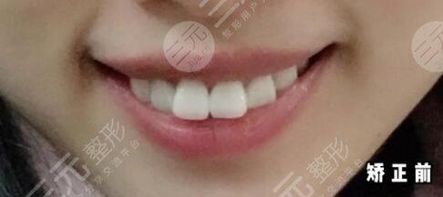 杭州口腔医院牙齿矫正前
