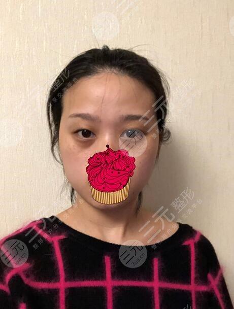 汉中中心医院整形科双眼皮前