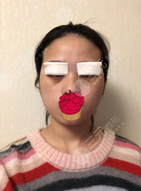 汉中中心医院整形科双眼皮后2天