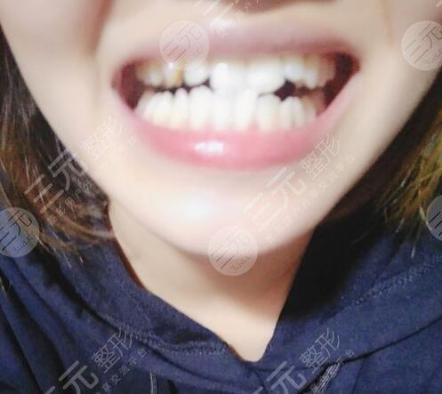 长春口腔医院牙齿矫正前