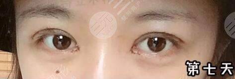 上海柏荟整形眼部综合案例后