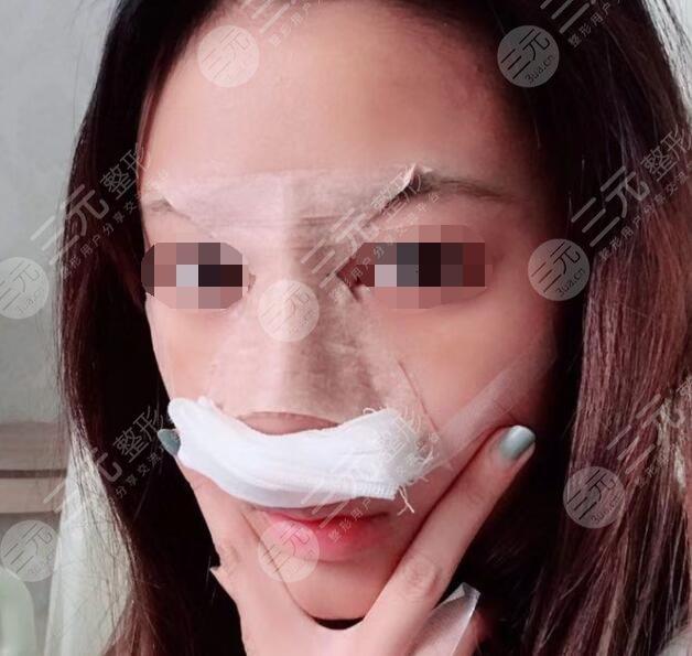 哈尔滨211美容科隆鼻后7天