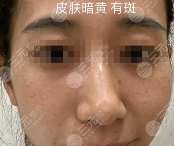 九江附属医院整形科激光祛斑前