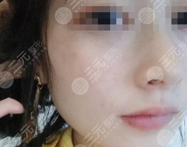 九江附属医院整形科激光祛斑后