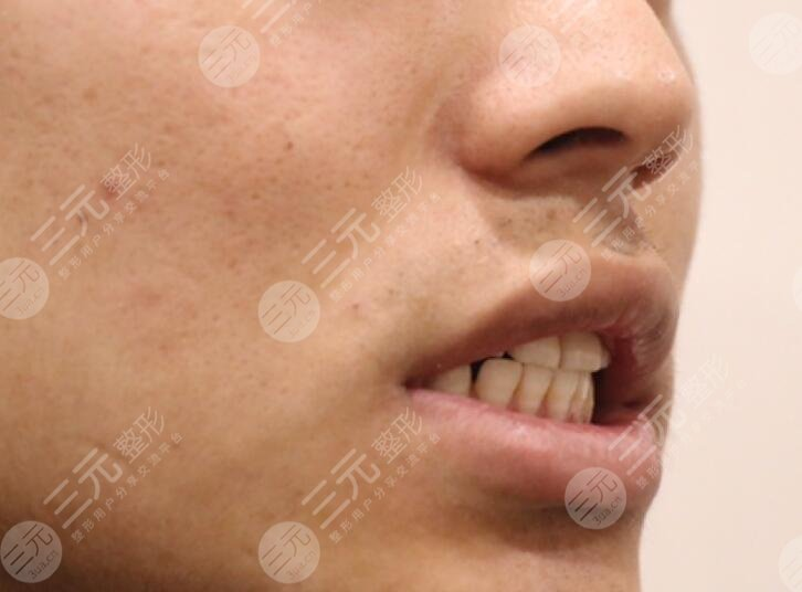 广州德伦口腔牙齿矫正前
