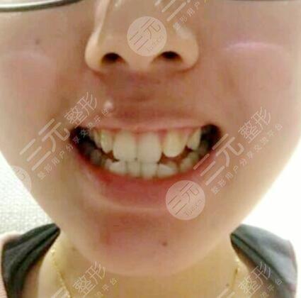 牙齿矫正前