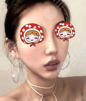 上海dream整形隆鼻术后1个月
