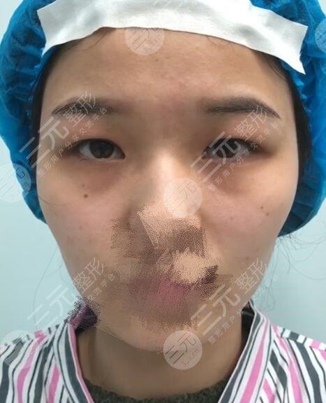 沈阳陆军总院割双眼皮去眼袋的详细价格表出来啦!