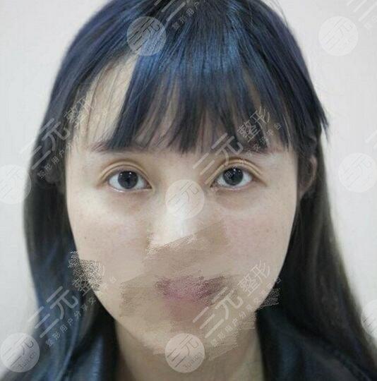 兰大二院整形科价格表2021新版,医生简介|双眼皮修复案例