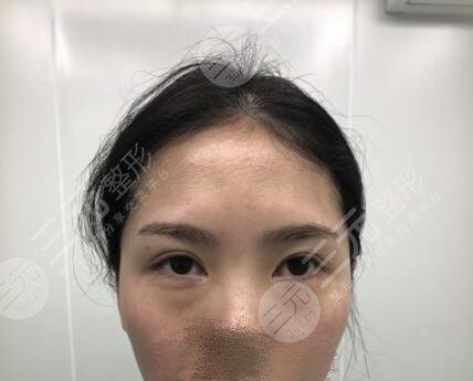 省立医院薛峰去眼袋价格是多少?