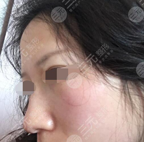 广东省人民医院激光美容后1个月