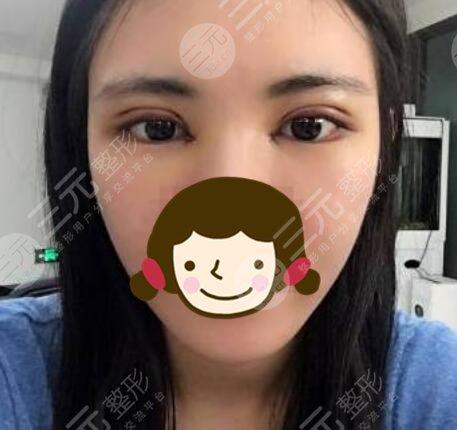 河南省人民医院整形美容科双眼皮后一周