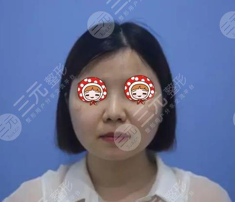 公安医院美容中心雀斑治疗案例前