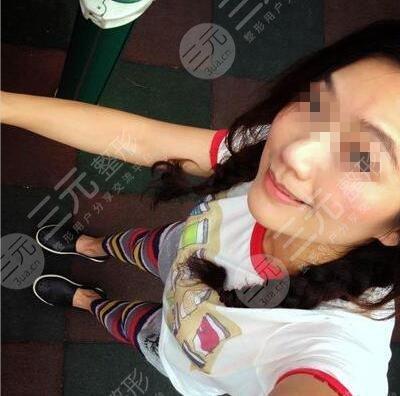 杭州市三医院美容科激光祛斑后