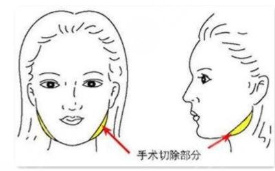 影响削骨瘦脸手术收费的因素