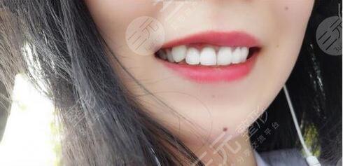 济南市口腔医院牙齿矫正后