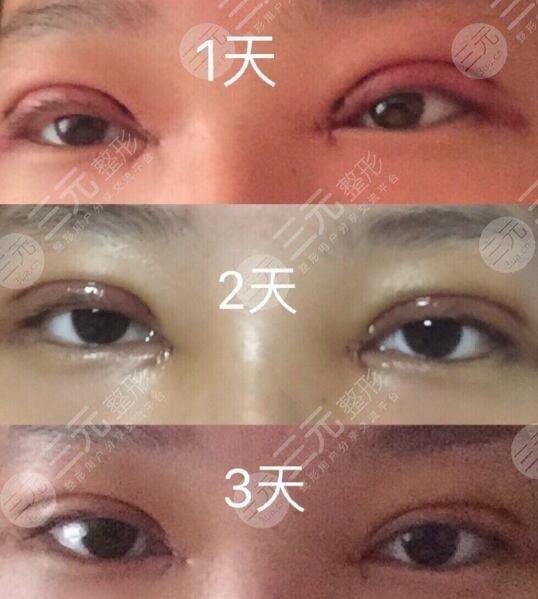 怀化第一人民医院做双眼皮过程