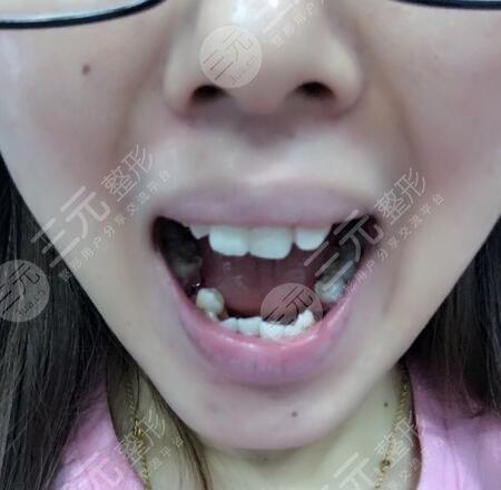 长沙美奥口腔医院牙齿修复前