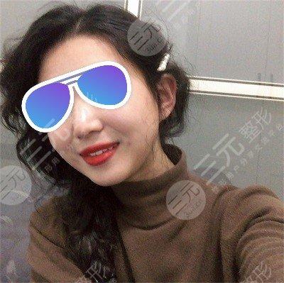 北京维尔口腔医院种植牙后3个月