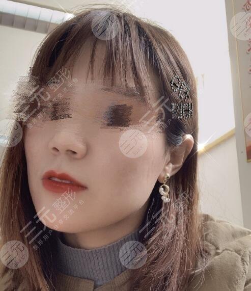 四川大学华西整形美容痘疤治疗后2个月
