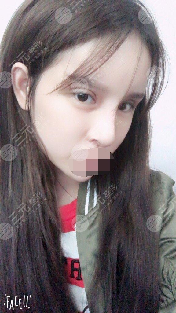 江苏省中医院眼鼻整形后55天