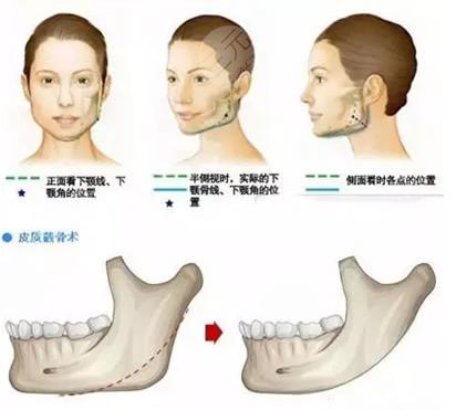 下颌骨手术有哪几种方式