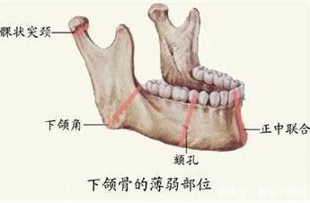 下颌骨手术需要多少钱