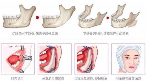 下颌骨手术的操作方法