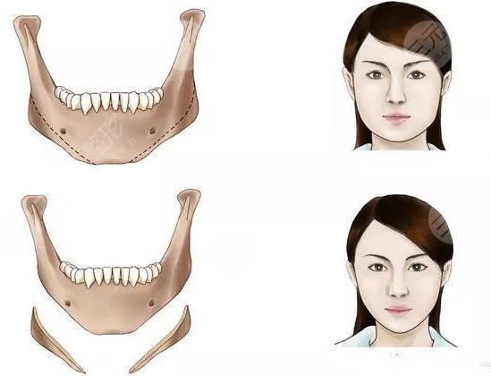 下颌骨手术之后的护理