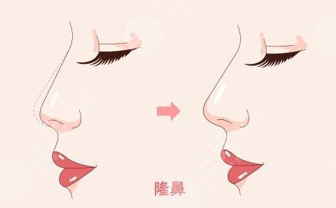 什么是膨体隆鼻