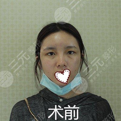北京八大处双眼皮手术前