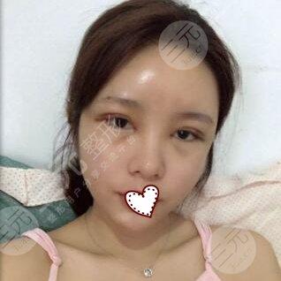 北京八大处双眼皮手术后3天