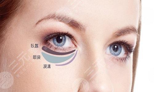 去眼袋手术有哪些注意事项