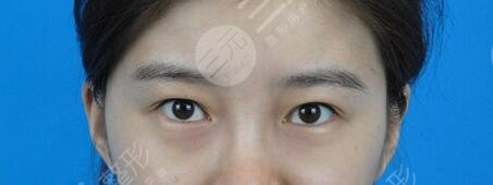 上海第九整形美容医院双眼皮整形前