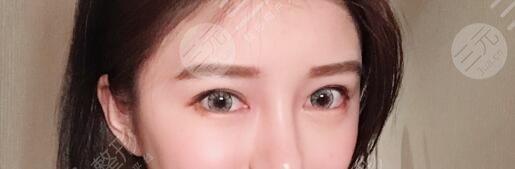 上海第九整形美容医院双眼皮整形后52天
