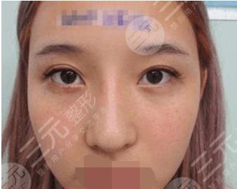 天津公安医院整形科鼻部整形前