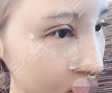 天津公安医院整形科鼻部整形后4天