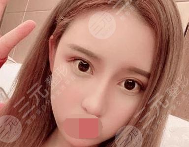 天津公安医院整形科鼻部整形后34天