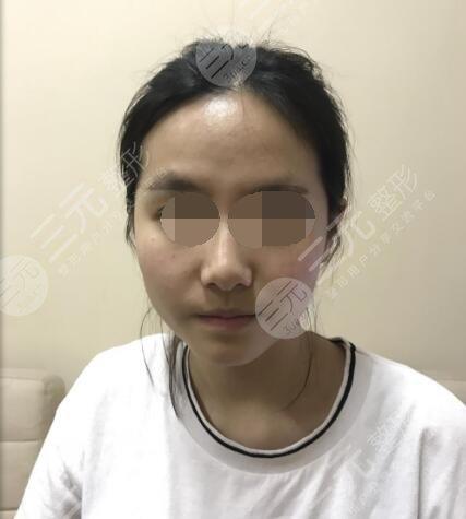 西京医院整形隆鼻整形前