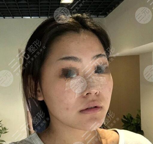 厦门第一医院整形科隆鼻效果图