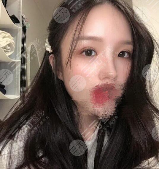 西京医院整形科眼部修复案例