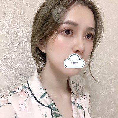 北京八大处整形隆鼻案例