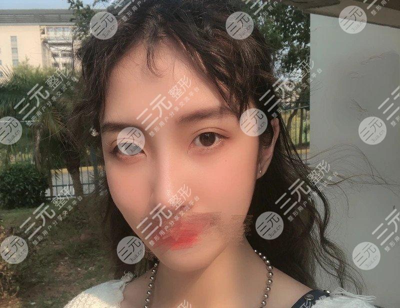 河南省人民医院整形美容科双眼皮案例