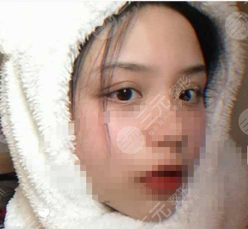西京医院整形双眼皮后