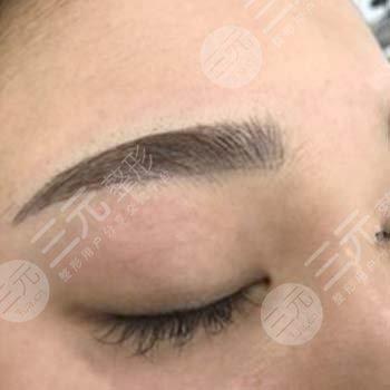 华美紫馨美容医院纹眉图片